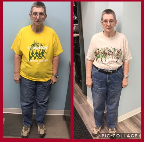 Weight Loss in Keokuk IA